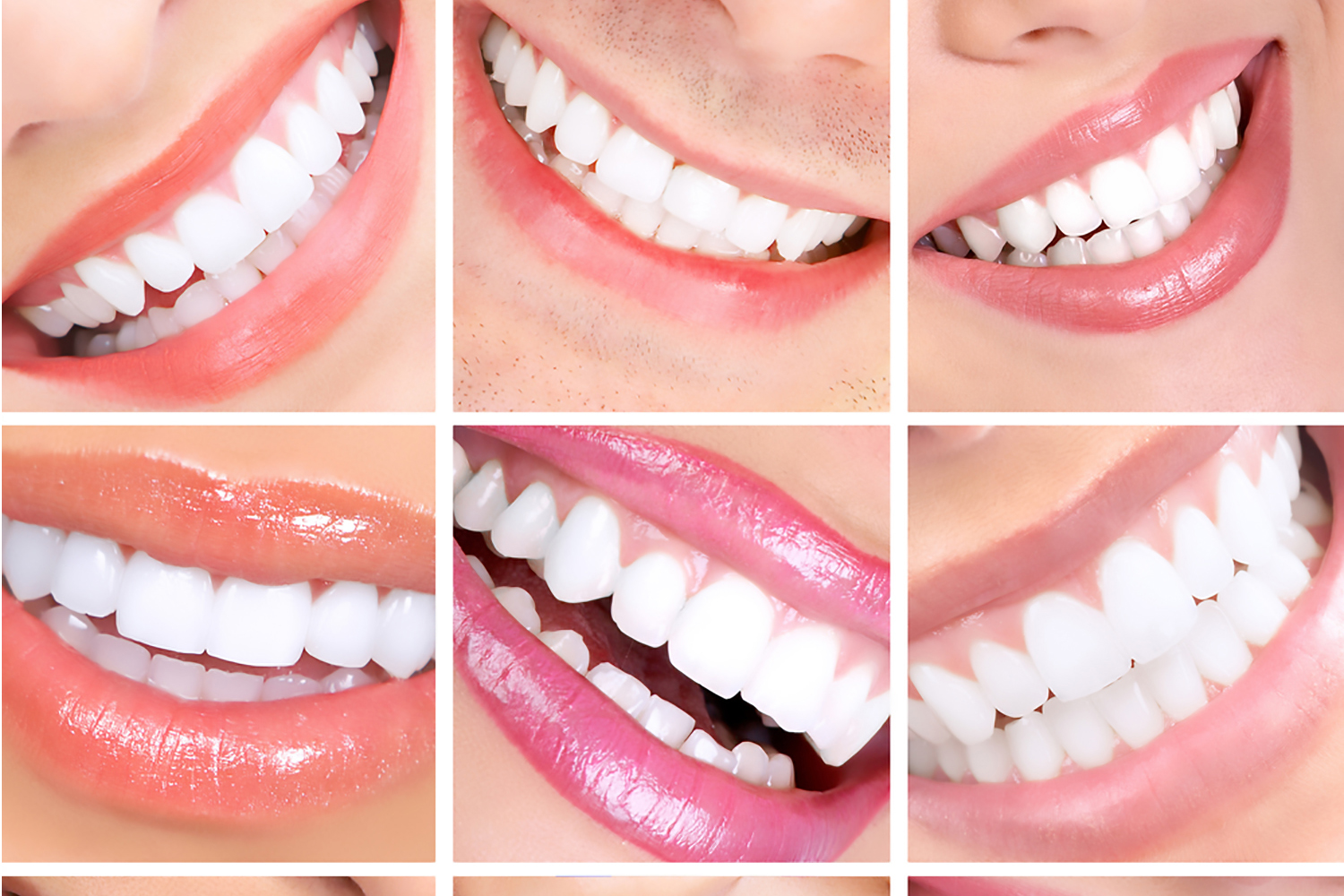 Teeth whitening (Spa Dent)